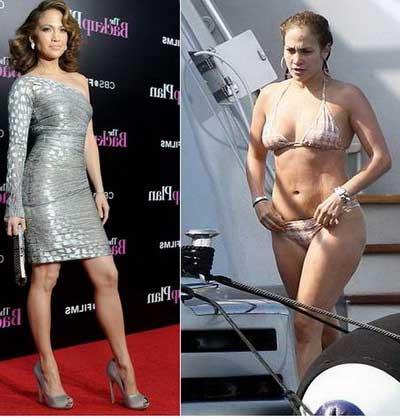 fotos de antes e depois